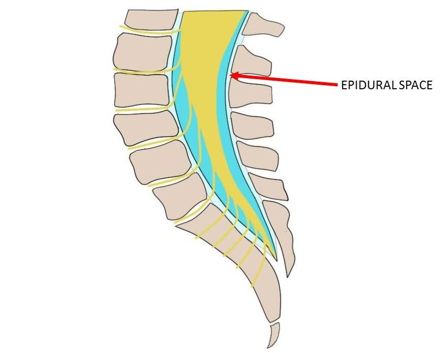 epidural space.