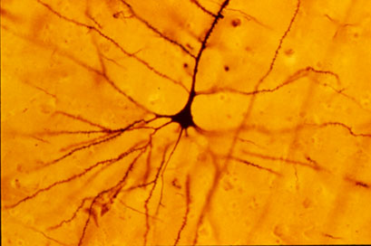 a pyramidal neuron stained with a golgi stain