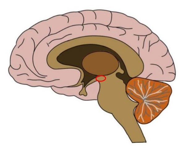 approximate area of the subthalamus circled in red.