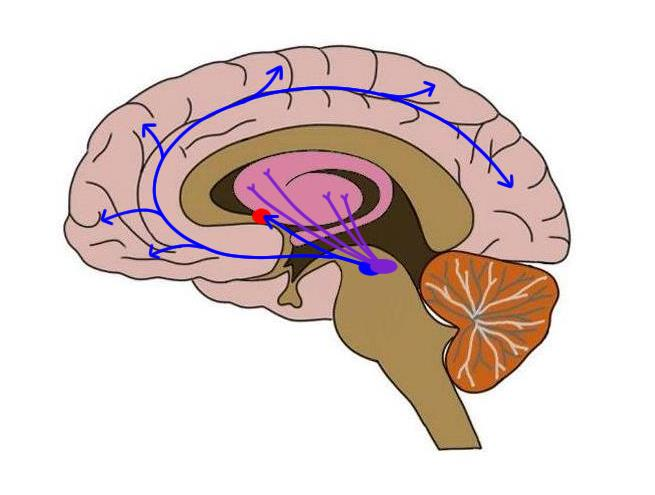 Dopamine pathways in the brain. The blue lines extend from the ventral tegmental area to the nucleus accumbens (red dot) to illustrate the mesolimbic dopamine pathway. Another blue line extends from the ventral tegmental area to the cerebral cortex, making up the mesocortical dopamine pathway. The purple lines represent the nigrostriatal dopamine pathway, which extends from the subdstantia nigra to the striatum.