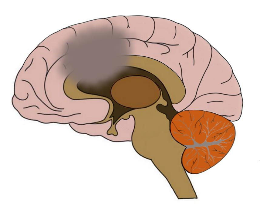 Know your brain: Nucleus accumbens — Neuroscientifically Challenged