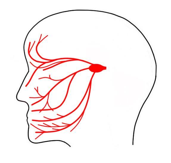 La cirugía más común utilizada para tratar la neuralgia del trigémino se denomina cirugía de descompresión microvascular