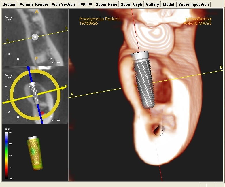 Cone Beam CT Image - implant planning