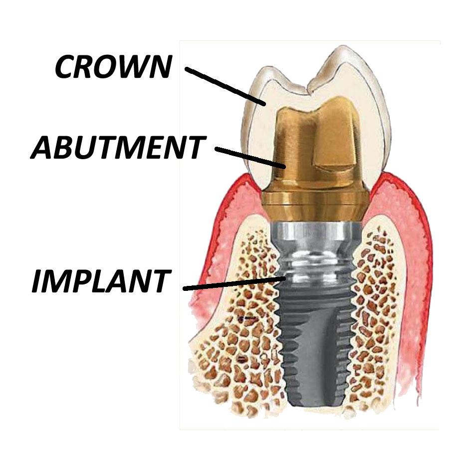 implantandcrown.jpg