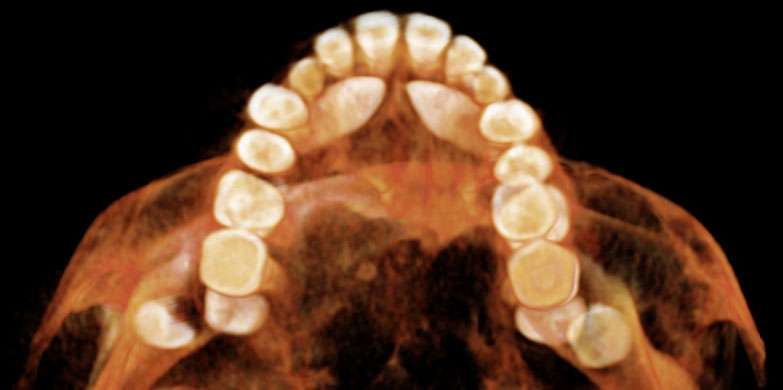 Unerupted Canines to be bonded for Orthodontics