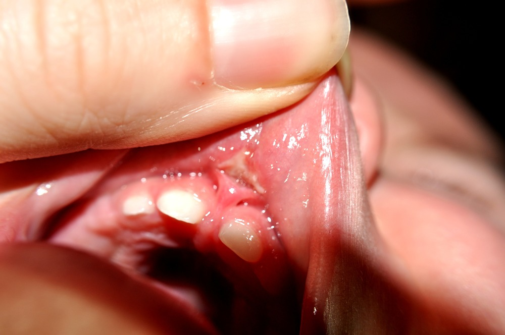 Can I Cut My Frenulum