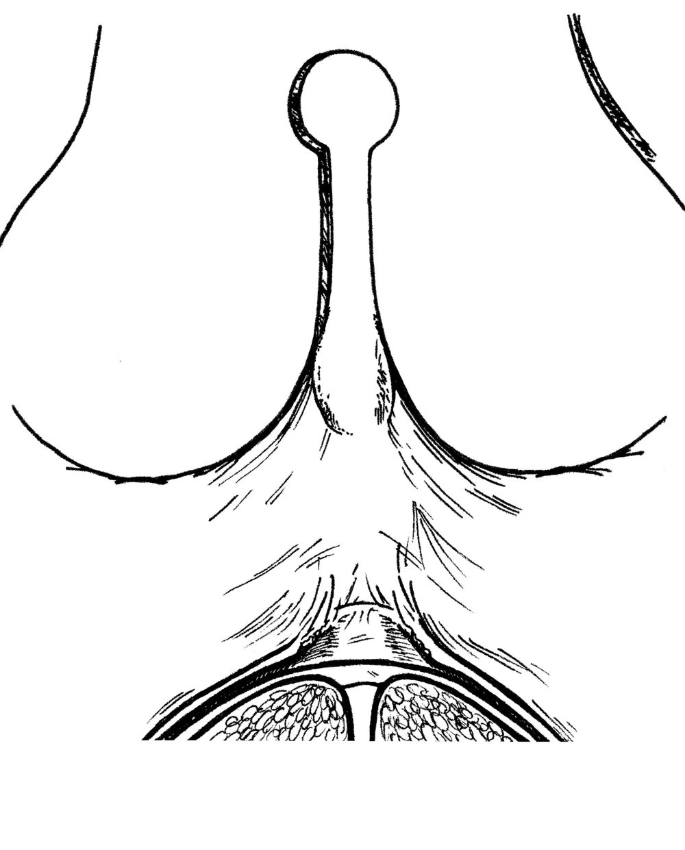 Release of the mucous membrane on either side of the central window