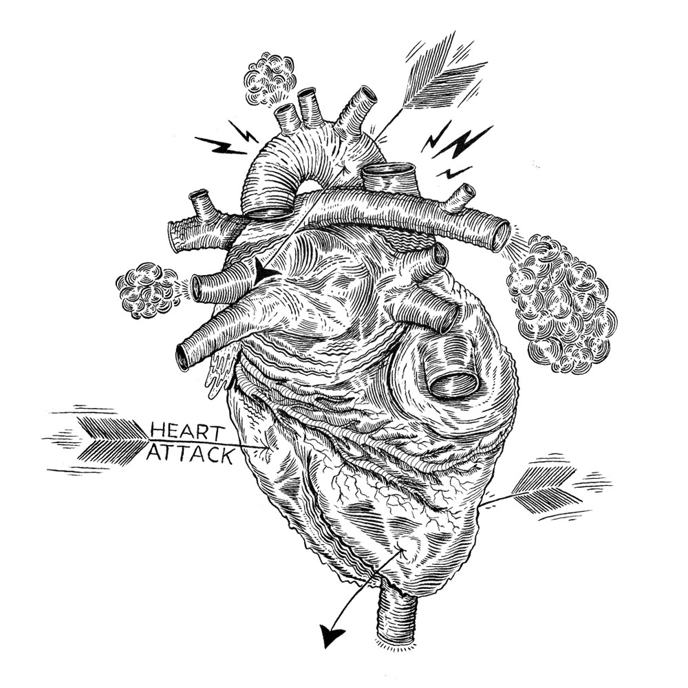 Made a series of smaller doodles for a commissioned job. This ones my interpretation of a heart attack, post more in the next few days.