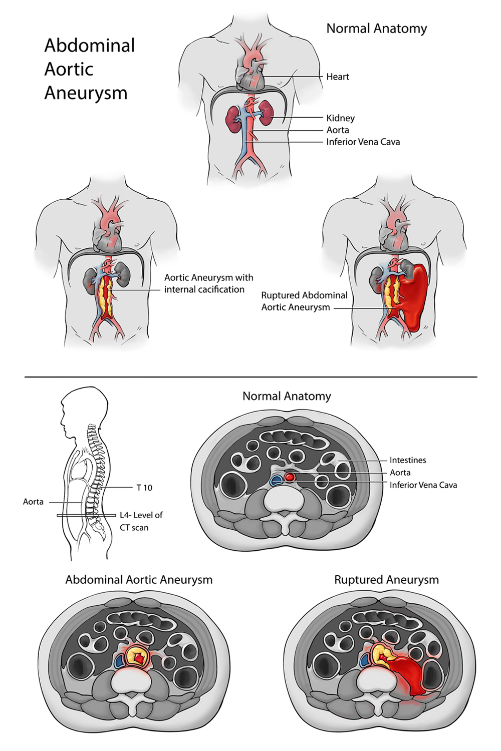 Abdominal Aortic Aneurysm- Medical Legal Panels