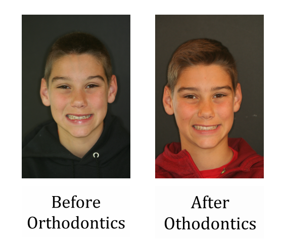 Before and After Ortho.PNG