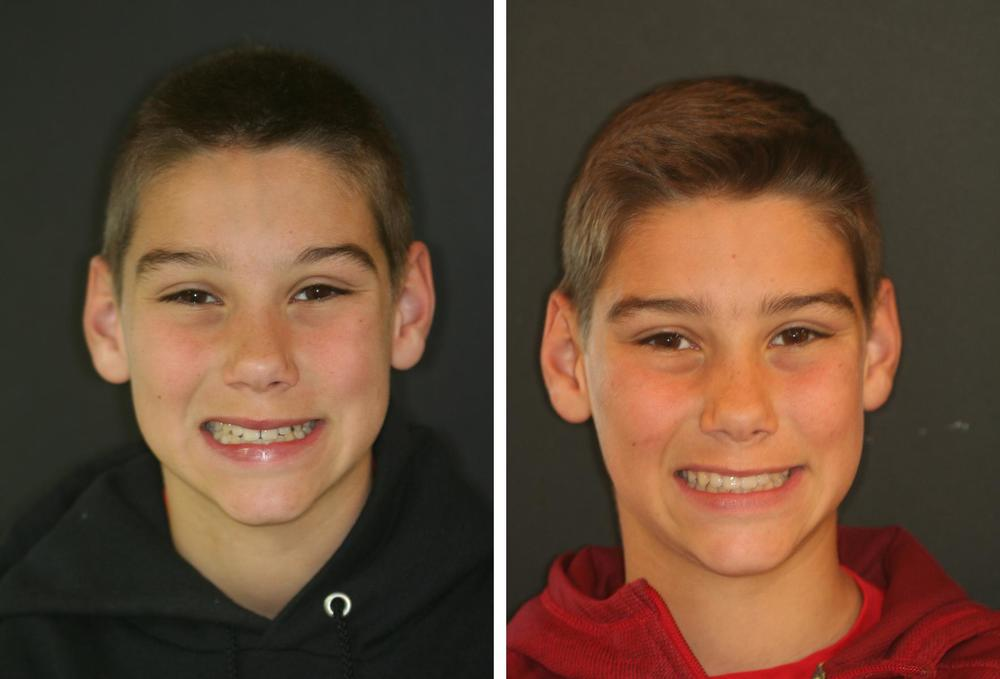 Before and After (Adolescent Orthodontics)