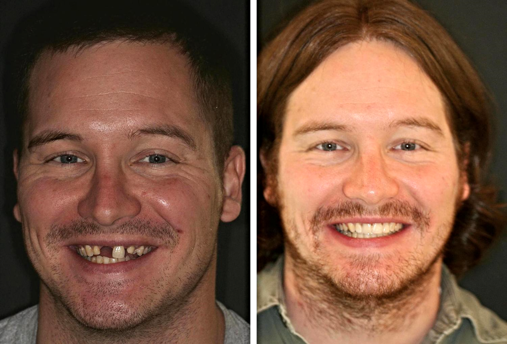 Before and After (Adult Orthodontics)