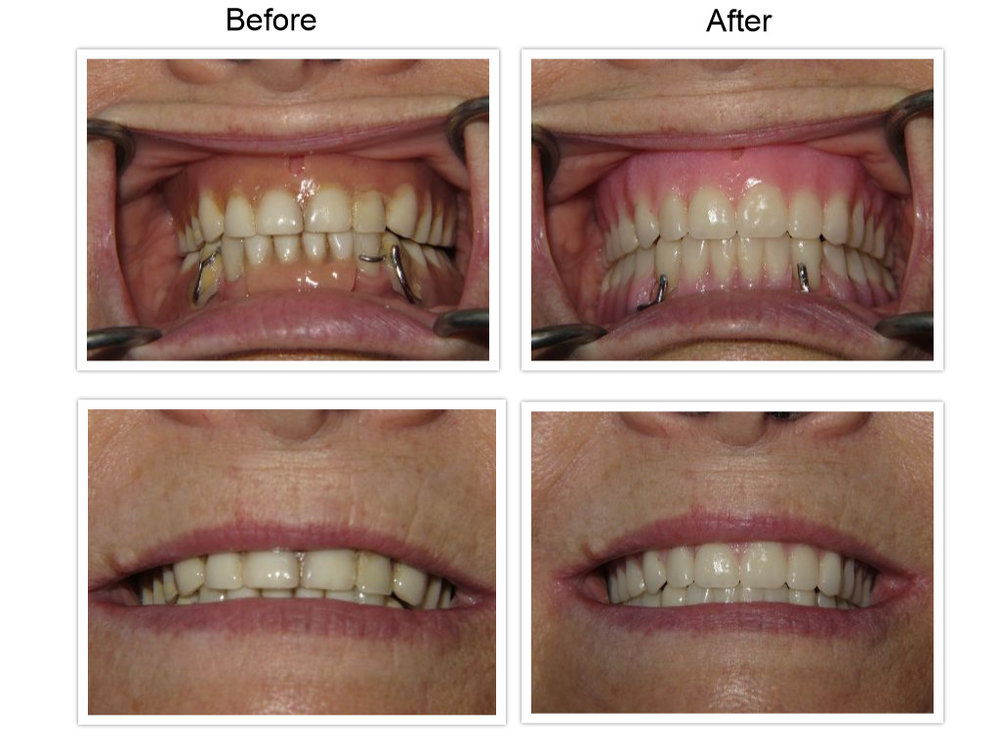 Denture Before After.jpg