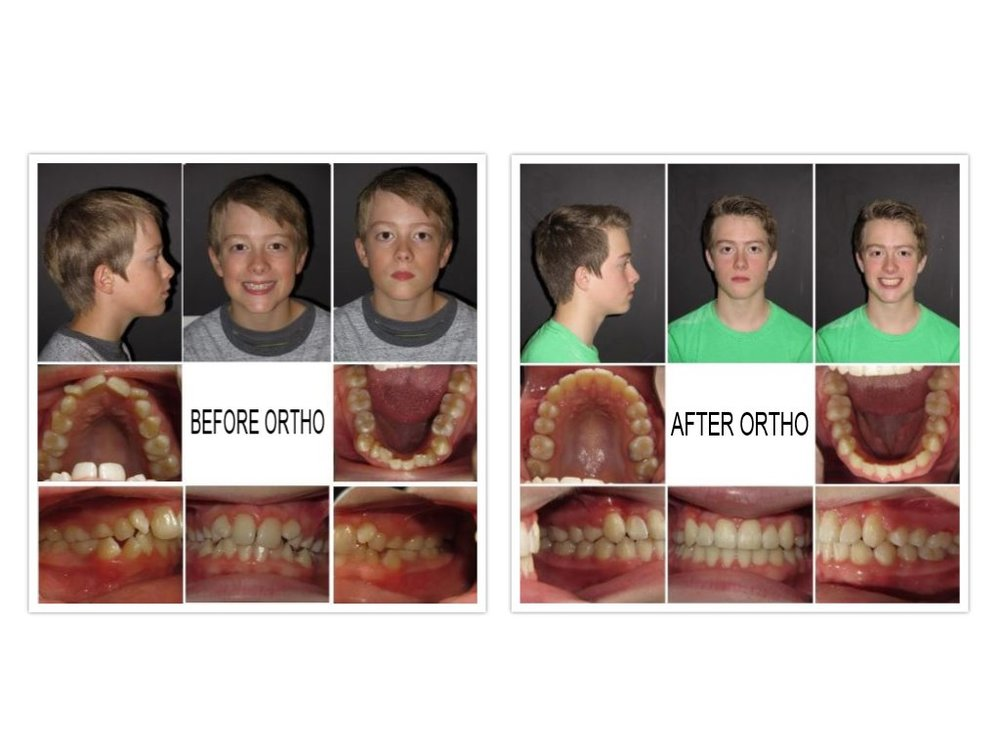 collage-2017-06-15.jpg