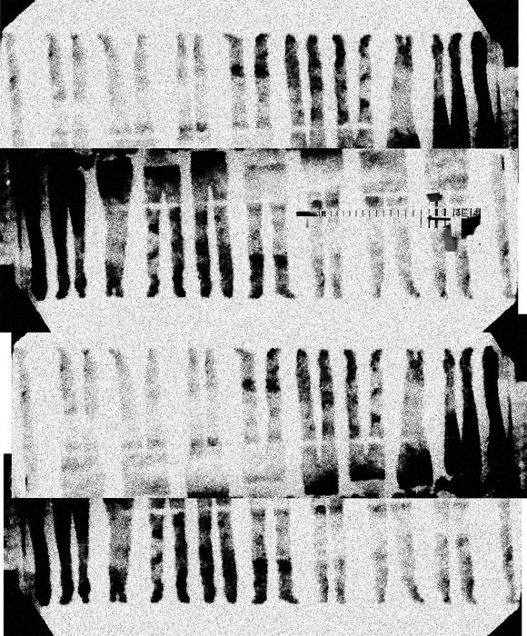 genes collage
