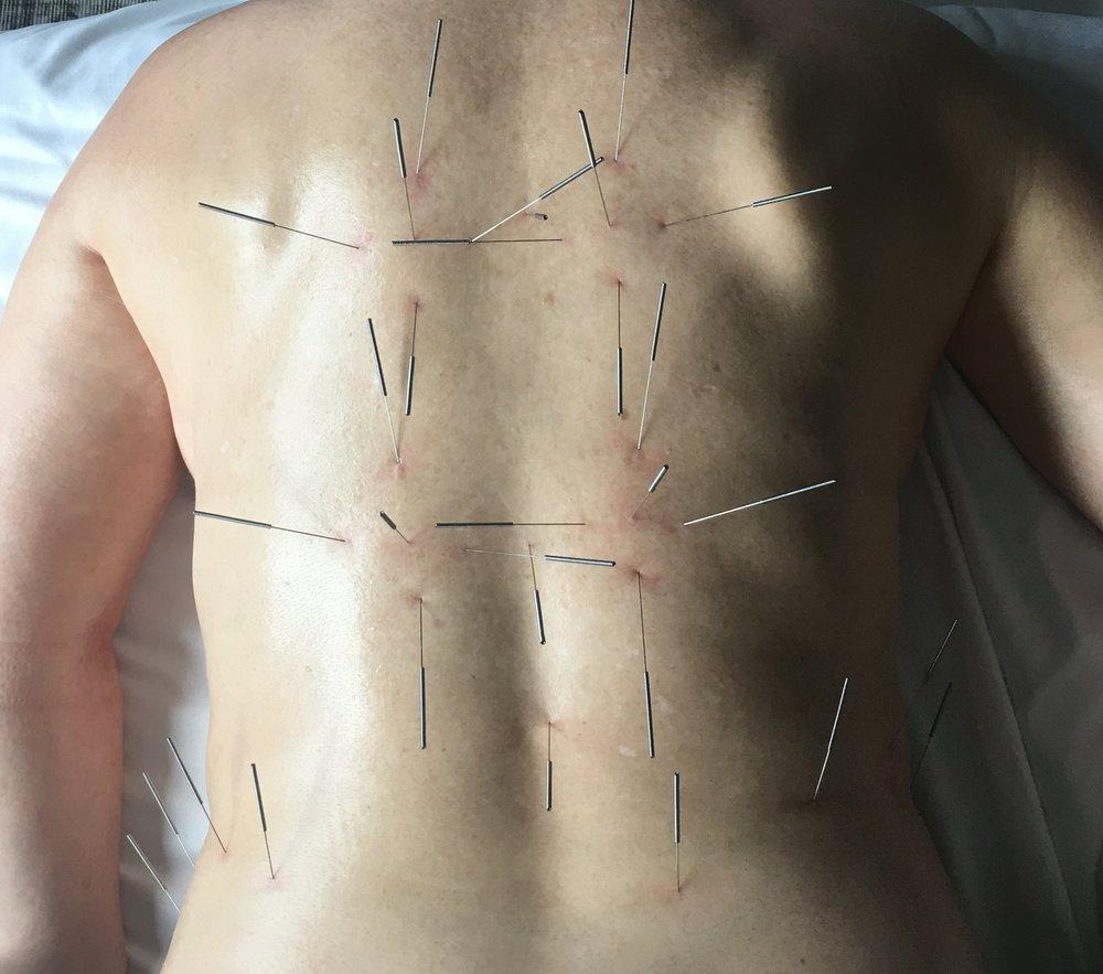Neijing Classical Acupuncture -