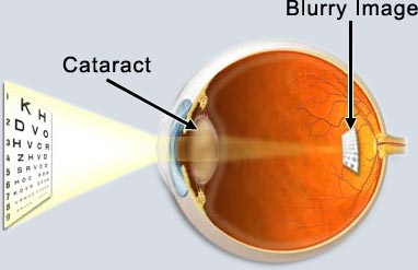 cataracts1.jpg
