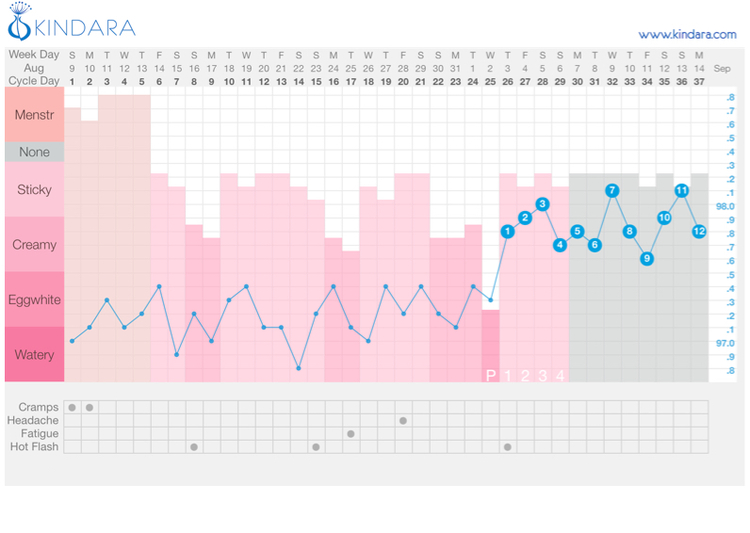 This premenopausal woman had a long cycle with intermixed sticky and creamy cervical fluid until she finally ovulated on about Day 25.