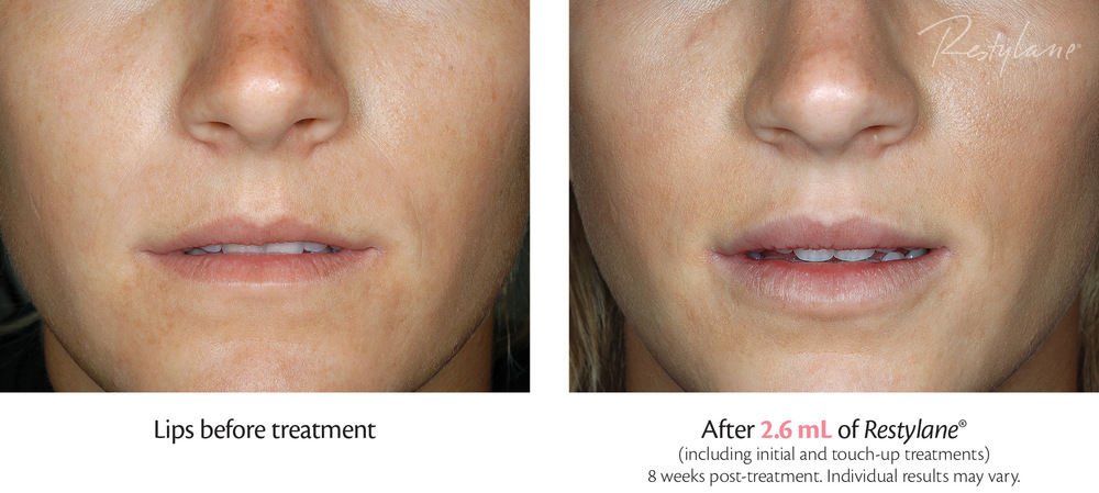 restylane before & after 2.jpg