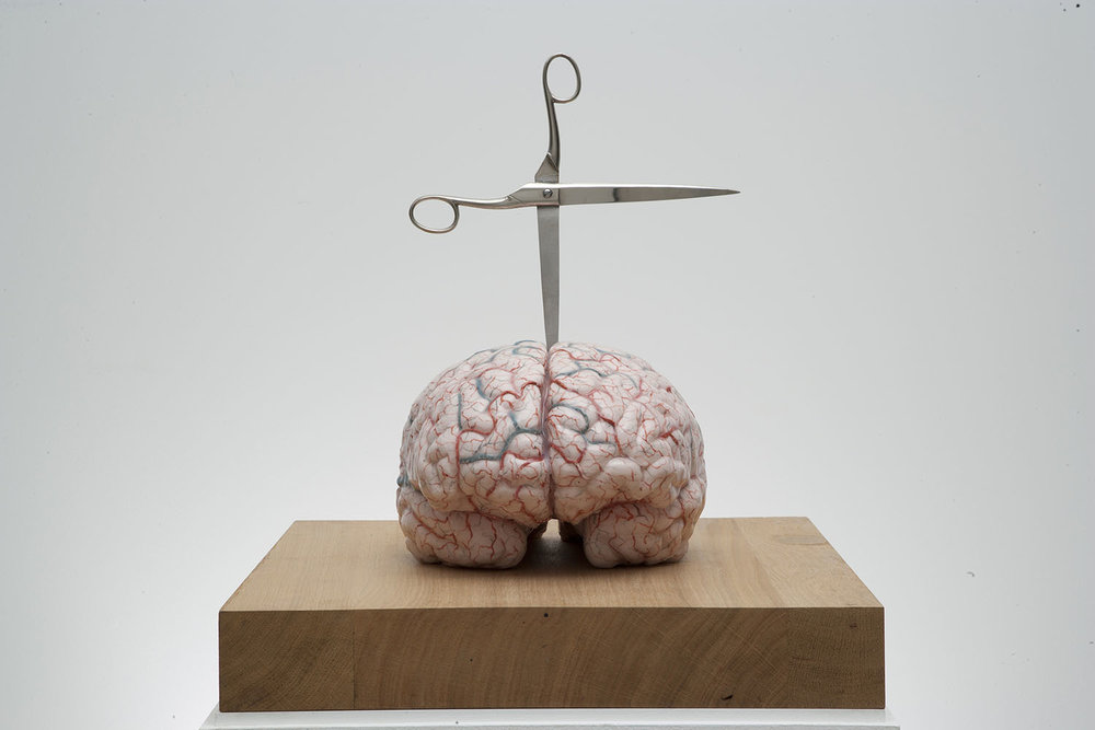 Brain with Star , 2012, silicon, pigment, glass, stainless steel, 27,2x39,9x28,8 cm Ph. Pat Verbruggen © Angelos bvba