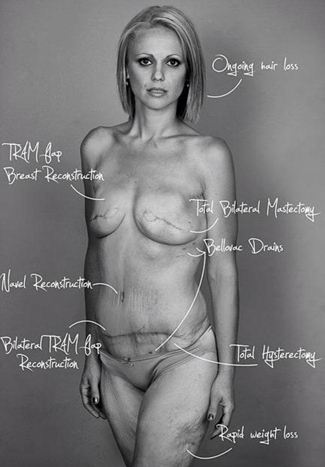 breast-cancer-survivor-body-changes