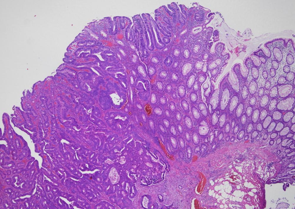 Mikroskopifoto af tyktarmen, hvor man kan se overgang fra normal tarmslimhinde (mod højre) til fuldt udviklet tarmkræft. Foto: Jan Lindebjerg, overlæge og patolog på Vejle Sygehus.