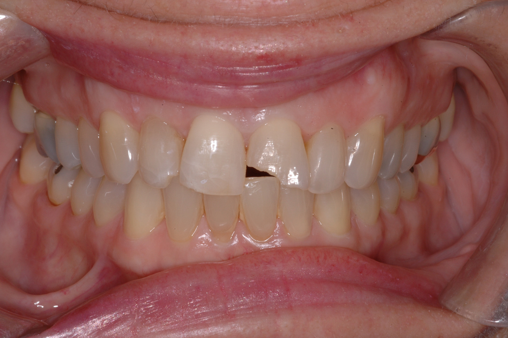 Our patient was a 65 year old female who fractured her left central incisor...