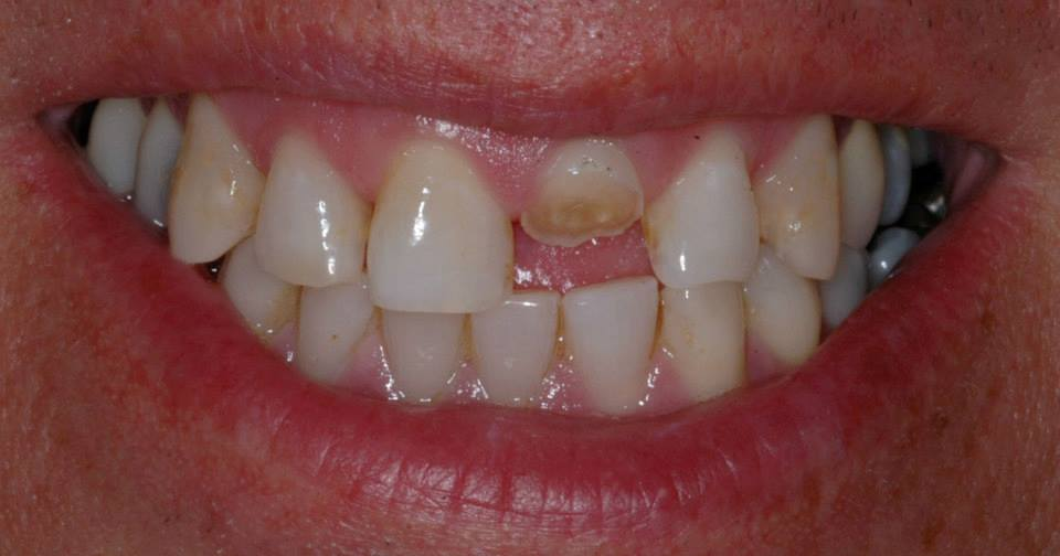 Our patient was a 50 year old male who fractured is left central incisor at work...