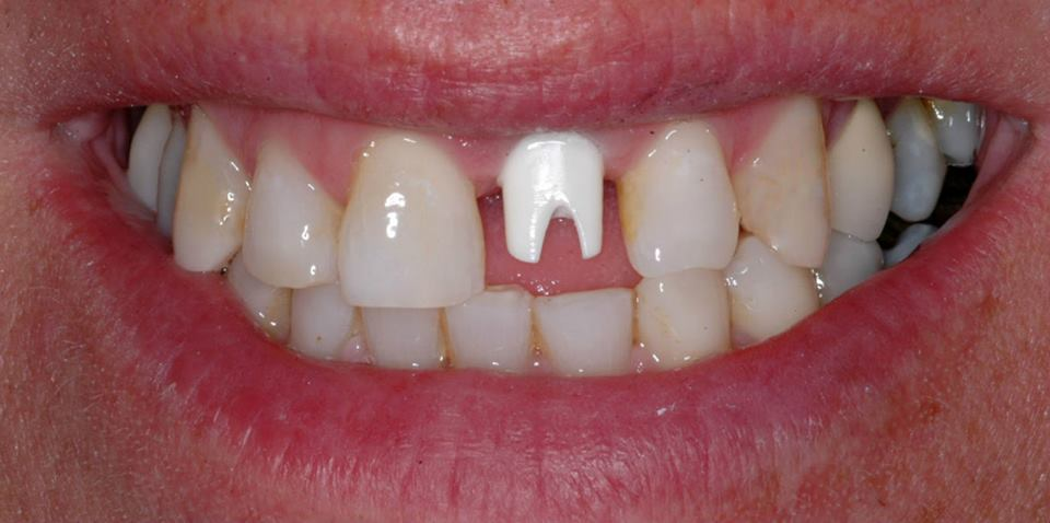 The tooth was removed, an implant placed, and a custom zirconium abutment was fabricated...