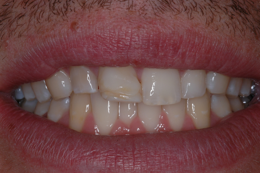 Our patient was a 20 year old male who wanted an improvement in his smile; specifically the 2 upper right incisors.