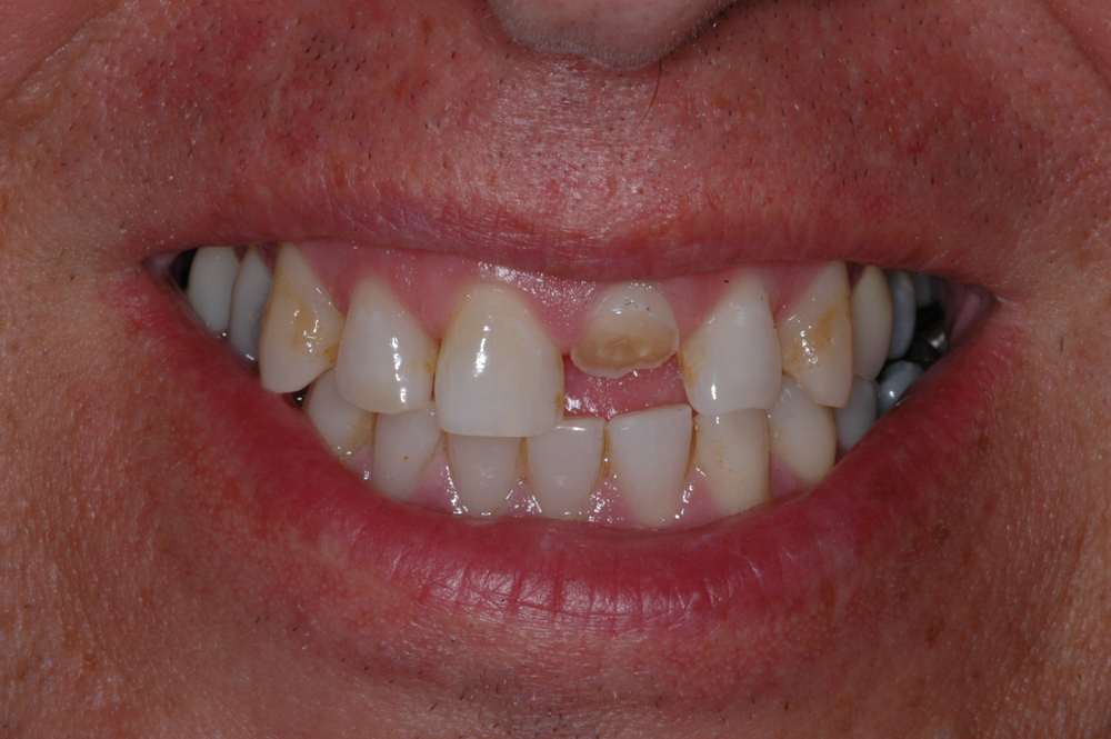Our patient was a 50 year old male who fractured his left central incisor at work.  The tooth was removed and an implant placed