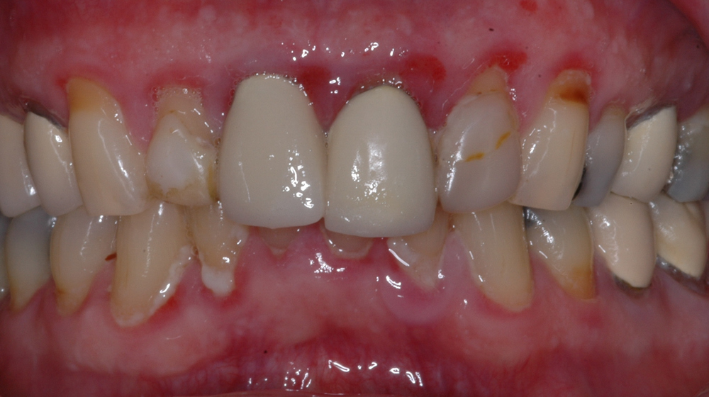 Our 70 year old male patient had quite a bit of inflammation of his tissues and also wanted to improve his smile