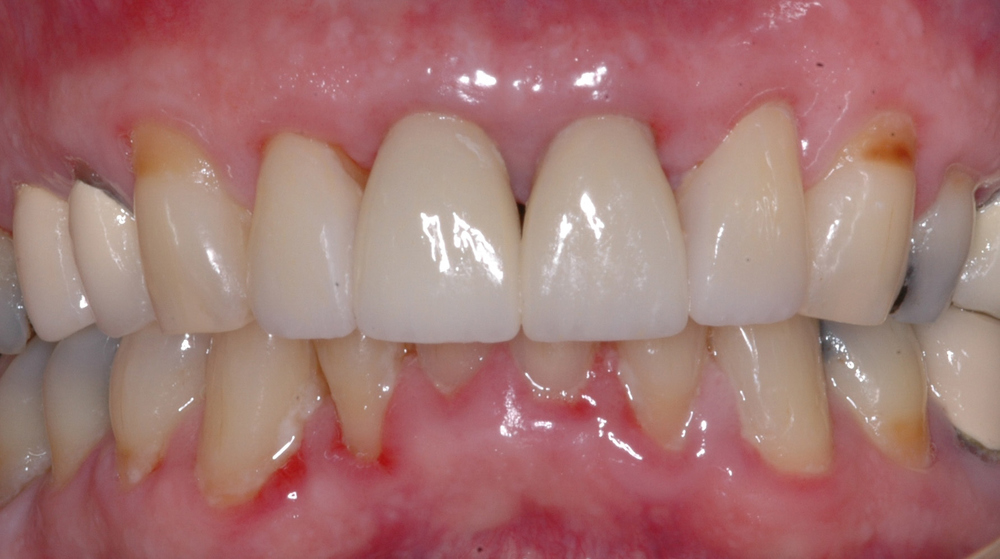 We fabricated crowns on the 4 upper incisors with proper contours, shade, and length.  This improved the tissue health around the crowns greatly improving his smile