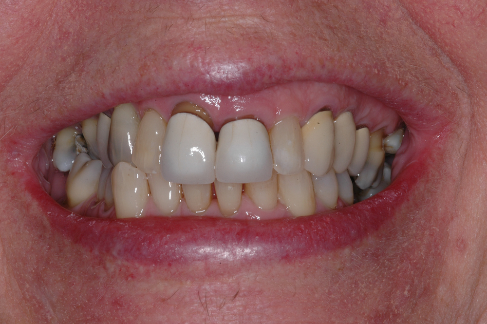 Our patient was a 70 year old female who had crowns on the 2 upper incisors for 30 years.  She never liked the esthetics.