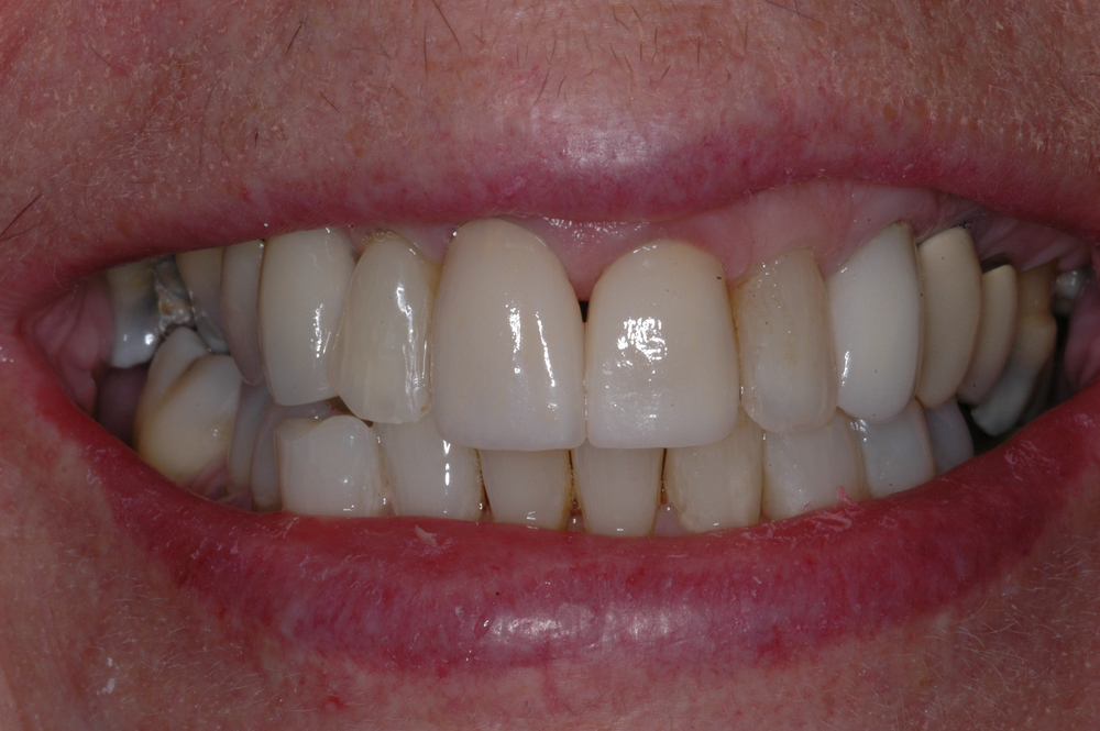 We replaced the old crowns with all ceramic crowns that had proper shade, translucency, contour and length.