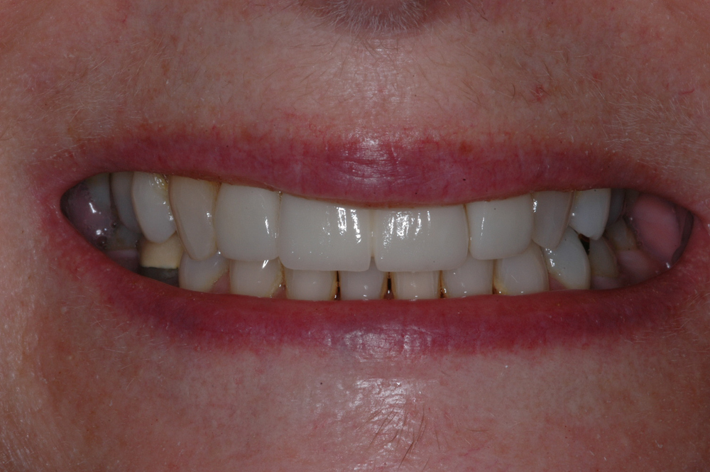 She completed orthognathic surgery, orthodontics, and we subsequently restored her upper front incisors.  Our end result was not only better esthetics, but optimal function as well.