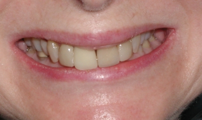 Our patient was a 65 year old female who was experiencing joint discomfort and also desired an improvement in her smile