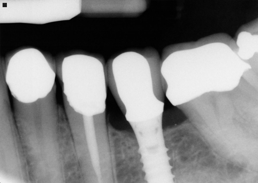 Instead of replacing the bridge with another bridge. we had an implant placed where the tooth was missing and then restored with single crowns. The biting forces are now distributed evenly, the patient can floss normally and teeth can be treated independently going forward.