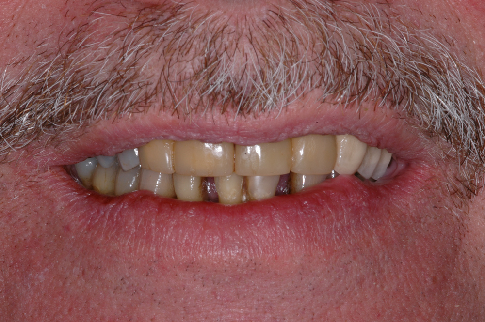 Our patient is a 60 year old male who desired a better smile