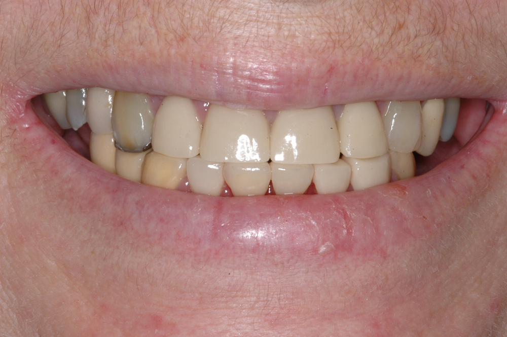 We restored her front teeth with crowns not only improving her esthetics but her function as well