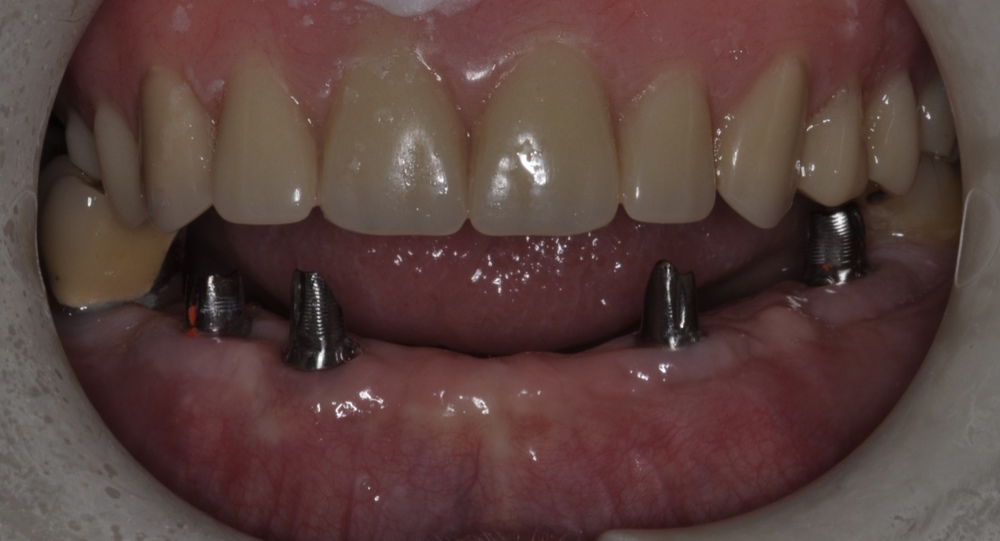 We restored the area using 4 implants and 4 custom abutments.