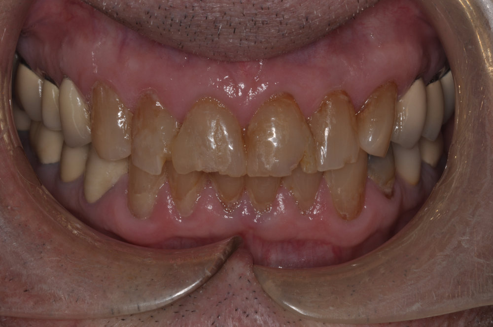 Our patient was a 70 year old male who desired to improve his smile. His upper incisors were chipped, worn and discolored...