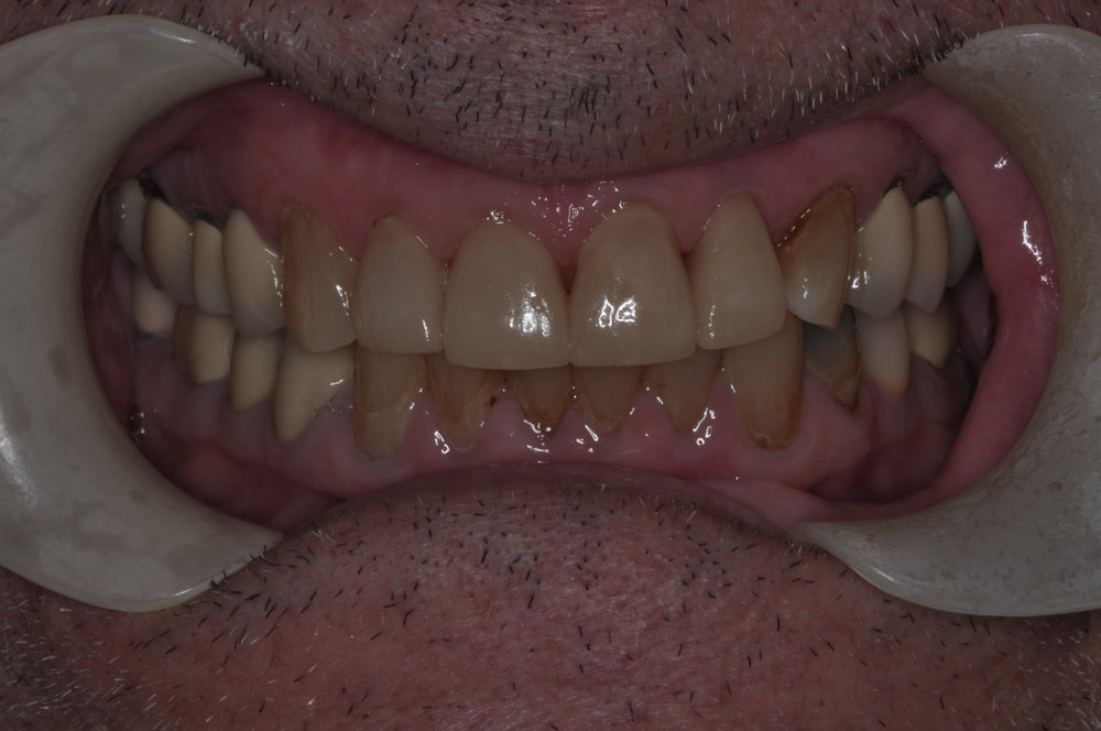 We restored the front incisors with Emax crowns which provide optimal esthetics and strength - our patient was extremely happy with the result