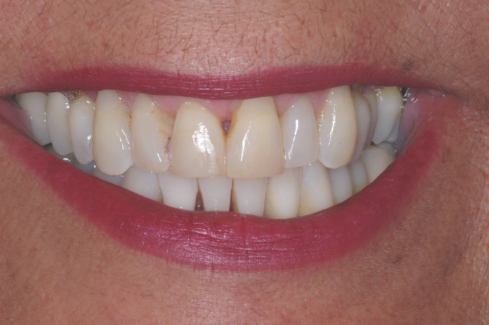 Our patient was a 62 year old female who desired an improvement in the esthetics of her smile