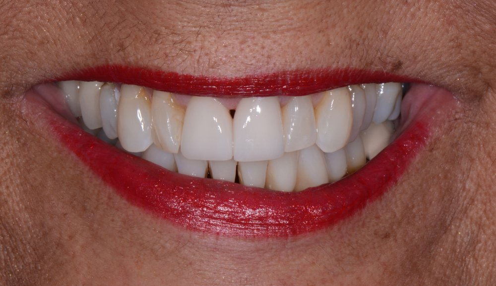 After Zoom in-office whitening, We restored the two central incisors which previously had discolored bonding. The patient loved the result.
