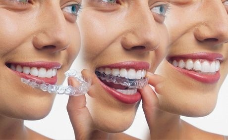 Invisalign sequence.jpg