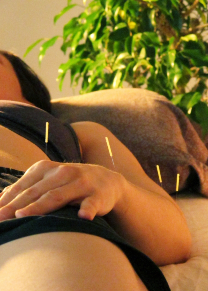 Acupuncture treatments can be designed to treat acute injuries or chronic conditions, such as allergies, asthma, IBS, GERD and more.