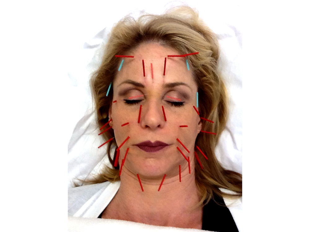 Acupuncture facial rejuvenation treatments have been clinically shown to reduce fine lines and wrinkles.