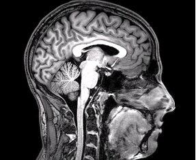 mri, ct, neuroimaging modalities for migraine/headache patients