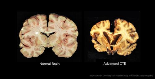 By Boston University Center for the Study of Traumatic Encephalopathy, via Wikimedia Commons